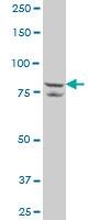 H00065010-A01 - SLC26A6 / Pendrin-L1