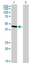 H00065985-B01 - Acetoacetyl-CoA synthetase