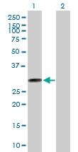 H00079178-B01P - Thiamine-triphosphatase (THTPA)