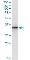 H00079178-D01 - Thiamine-triphosphatase (THTPA)
