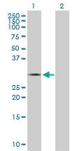 H00079178-D01P - Thiamine-triphosphatase (THTPA)