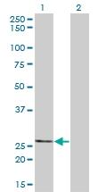 H00079178-M01 - Thiamine-triphosphatase (THTPA)