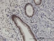 H00079706-M08 - PRKRIP1