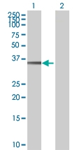 H00079840-B01 - NHEJ1 / Protein cernunnos