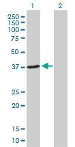 H00079840-B01P - NHEJ1 / Protein cernunnos