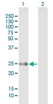 H00079903-B01P - N-acetyltransferase 15