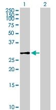 H00079947-B01P - Dedol-PP synthase