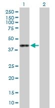 H00080150-B01P - L-asparaginase