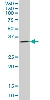 H00080328-B01P - ULBP2 / NKG2D ligand 2