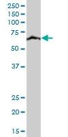 H00080347-A01 - CoA synthase