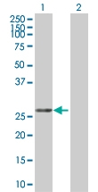 H00080347-B01 - CoA synthase