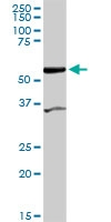 H00080347-D01P - CoA synthase