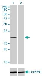 H00080347-M01 - CoA synthase