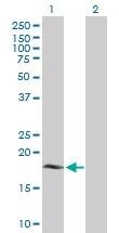 H00080777-B01P - Cytochrome b5 type B