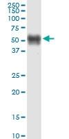 H00080975-M09 - TMPRSS5 / Spinesin