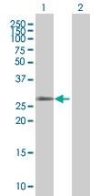 H00081797-B01 - Olfactory receptor 12D3