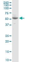 H00081839-D01P - Vang-like protein 1 (VANGL1)