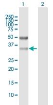 H00081855-B01P - Sideroflexin-3 (SFXN3)