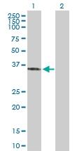 H00081855-D01P - Sideroflexin-3 (SFXN3)