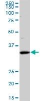H00081855-M01 - Sideroflexin-3 (SFXN3)
