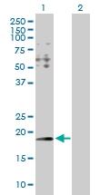 H00081888-D01P - Hydroxypyruvate isomerase / HYI