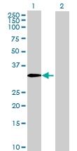 H00083729-B01 - Inhibin beta E chain (INHBE)