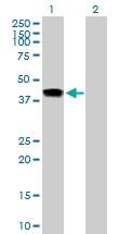 H00083729-B02P - Inhibin beta E chain (INHBE)