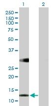 H00083758-B01 - Retinol-binding protein 5 / RBP5