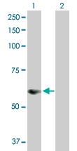 H00083891-D01P - Sorting nexin-25 (SNX25)