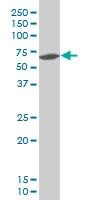 H00083999-A01 - Kremen protein 1
