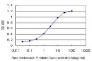 H00084306-M01 - PDCD2L