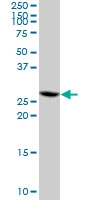H00084324-B01 - Nuclear protein Hcc-1