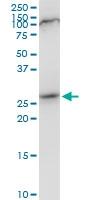H00084324-B01P - Nuclear protein Hcc-1