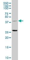 H00084676-A01 - TRIM63 / MURF1 / RNF28