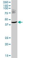 H00084676-D01 - TRIM63 / MURF1 / RNF28