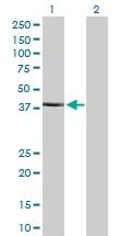H00084676-D01P - TRIM63 / MURF1 / RNF28