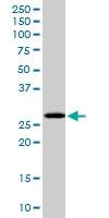 H00084759-D01P - PCGF1 / RNF68