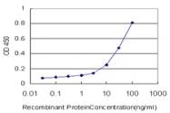 H00084790-M04 - alpha Tubulin / TUBA1C / TUBA6