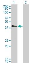 H00084851-M01 - TRIM52 / RNF102