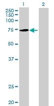 H00084861-B01 - Kelch-like protein 22