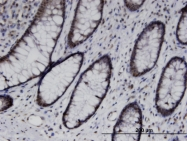 H00084959-M01 - UBASH3B / STS1