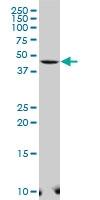 H00085465-A01 - Selenoprotein I (SELI)
