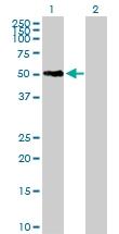 H00090203-B02P - Sorting nexin-21 (SNX21)
