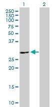 H00090423-B01P - ATP6V1E2