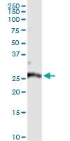 H00090423-D01 - ATP6V1E2