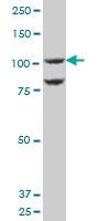 H00091156-A01 - IGFN1