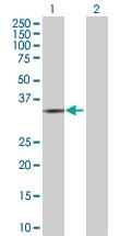 H00091522-B01 - Collagen type XXIII alpha 1 chain