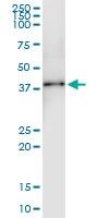H00091522-D01 - Collagen type XXIII alpha 1 chain