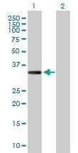 H00091522-D01P - Collagen type XXIII alpha 1 chain