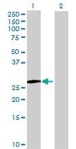 H00091734-B01 - IPP isomerase 2 / IDI2